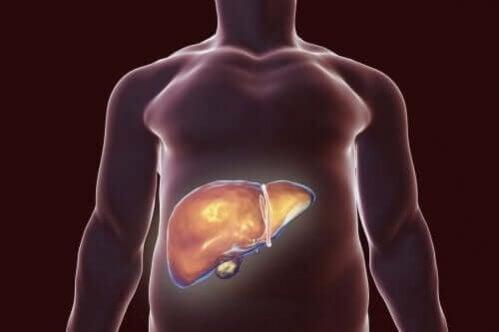 Dieta para pessoas com cálculos biliares