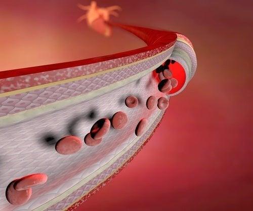 A alteração dos vasos sanguíneos pode comprometer o fluxo sanguíneo do paciente.