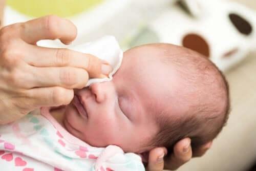 Como tratar os olhos lacrimejantes em bebês