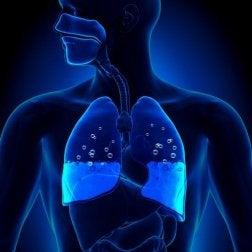 Edema pulmonar, quais os sintomas e causas?
