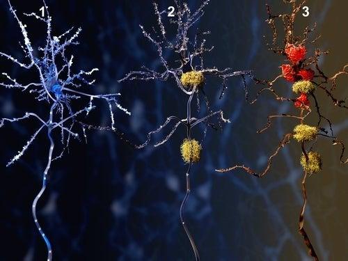 Sinapse nas fases do Alzheimer