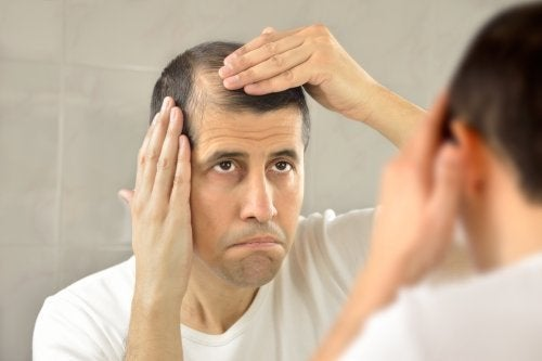 Homem com queda de cabelo