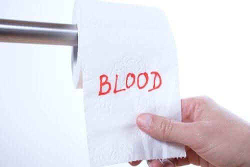 Sangue nas fezes, por que ocorre?