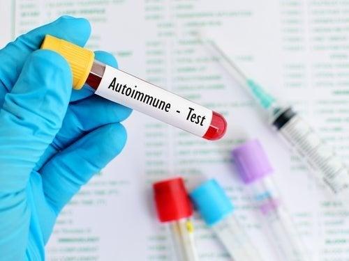 Teste de doenças autoimunes