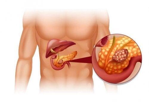 Tratamento de tumores neuroendócrinos de pâncreas