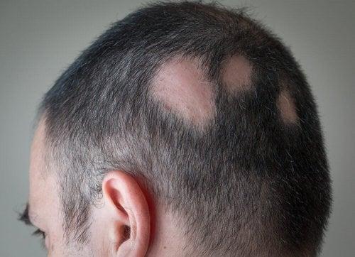 Estresse causa alopecia