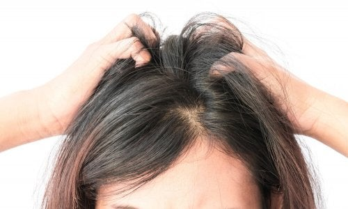 Coceira no couro cabeludo devido à caspa