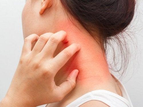 Dermatite atópica causa coceira