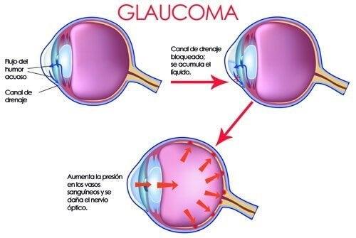 Olho com glaucoma