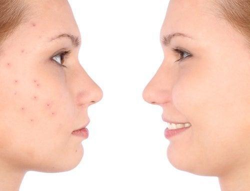 Lavar pincéis de maquiagem ajuda a evitar reações indesejadas
