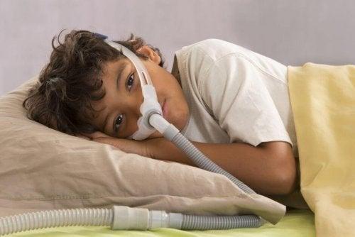 Síndrome de apneia obstrutiva do sono em crianças
