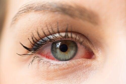 Mulher com olhos vermelhos.