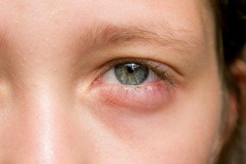 Acorda com os olhos inchados? 5 remédios rápidos!
