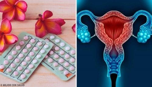 Desogestrel é um tipo de pílula anticoncepcional