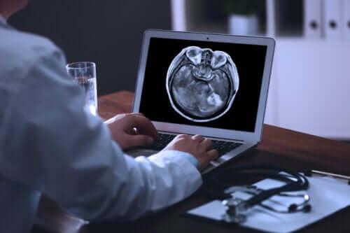 Metástase cerebral: o que é e qual é o seu tratamento?