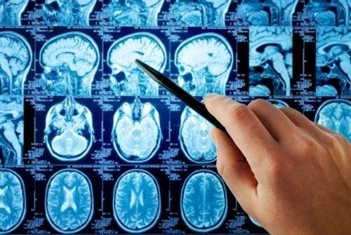 Ressonância magnética para diagnóstico