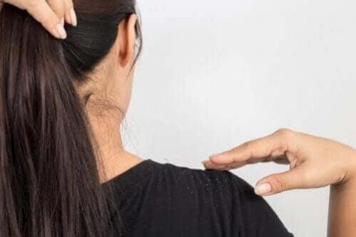 Tratamento com ovo para caspa no cabelo