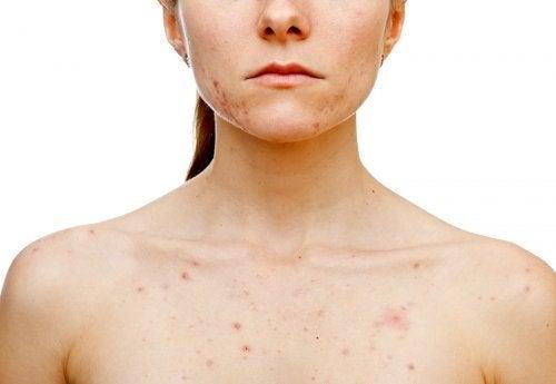 O que desencadeia acne nas mulheres?