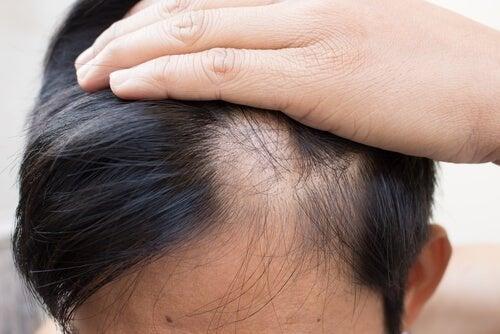 Alopecia areata, perda de cabelo