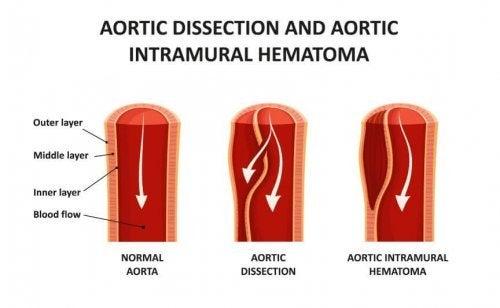 Disecção aórtica