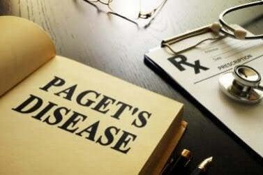 Doença de Paget: tudo o que você precisa saber