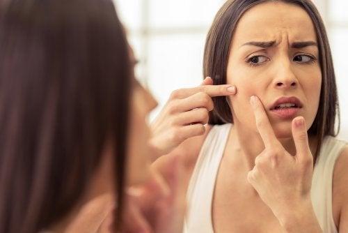 Cravos e espinhas: hábitos para evitar seu surgimento