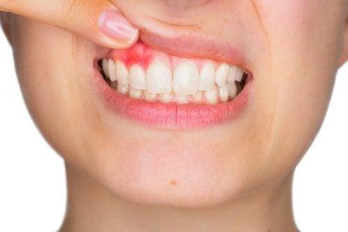 Ir ao dentista evitará gengivite