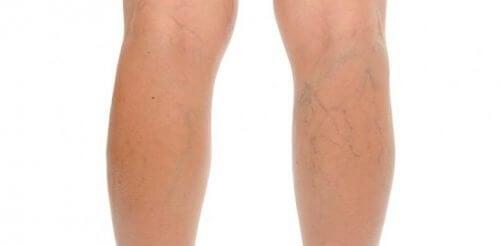 Pernas com varizes