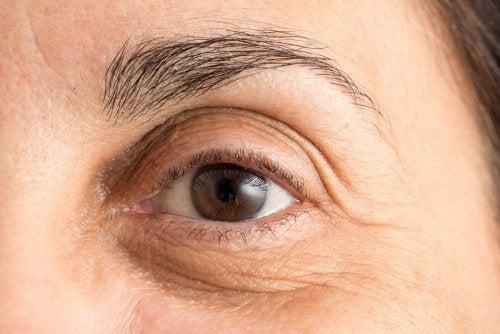 4 hábitos que causam rugas precoces em seu rosto