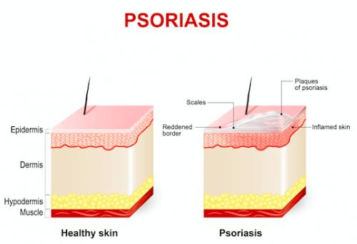 Ação da acitretina na pele