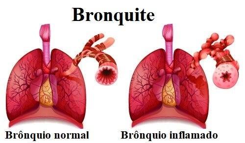 Brionquite pode dar tosse