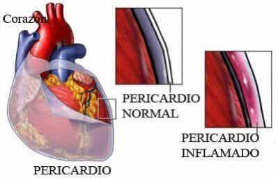 Pericardite: sintomas, causas e tratamento