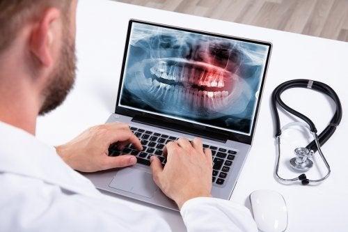 Hiperdontia: causas e tratamento