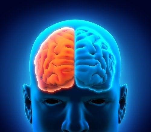 O que é a hemisferectomia e como é o pós-operatório