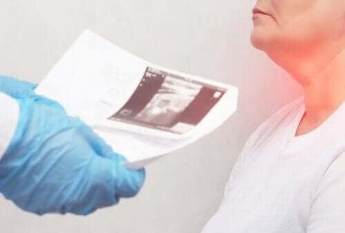 Nódulos da tireoide: sintomas e causas