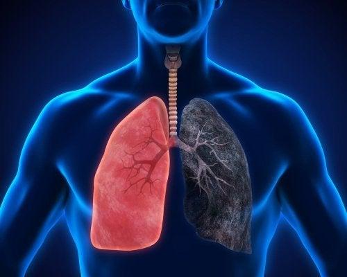 Comparação entre pulmão saudãvel e pulmão doente