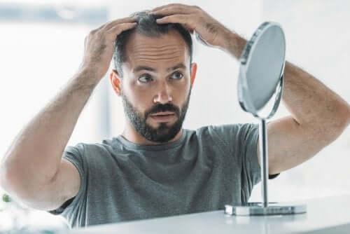 Alopecia androgenética: sintomas, causas e tratamento