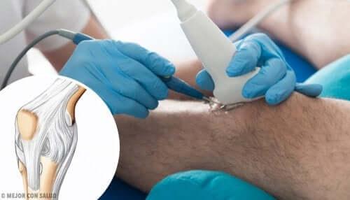 Operação minimamente invasiva do joelho
