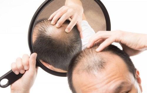A alopecia androgenética é um dos motivos da queda de cabelo