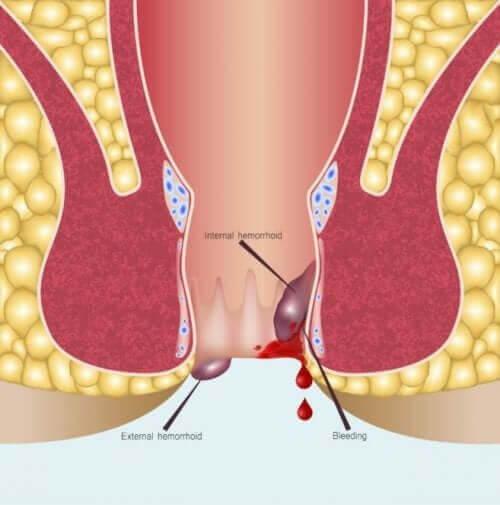 Anuscopia: quando é indicada para um paciente