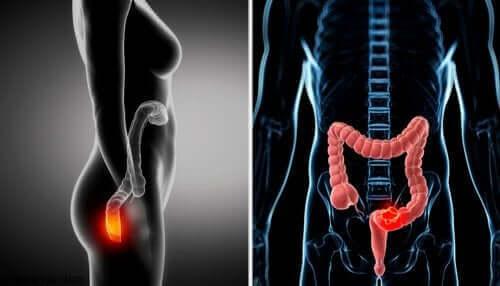 Fisiologia do anus e do reto