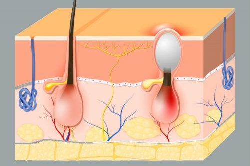 Fisiologia do folículo piloso e furúnculos vaginais