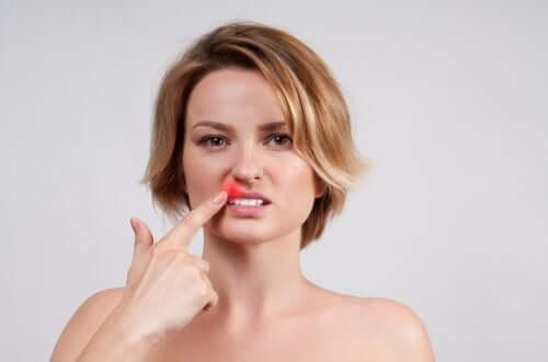 O que é herpes labial?