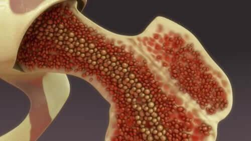 Infusão intraóssea: cuidados posteriores a esta técnica