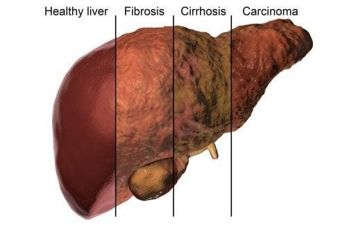 Partes do fígado