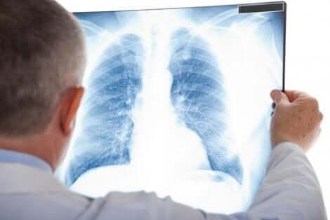 Radiografia de pulmão para diagnóstico
