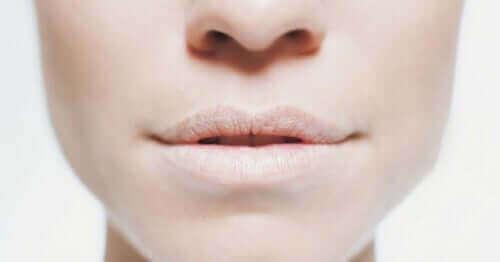 Lábios secos são sinal de desidratação