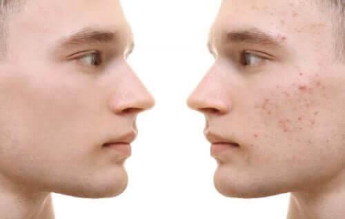 Cúrcuma para a acne: benefícios e modo de uso