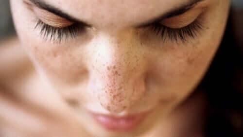 Moça com manchas no rosto
