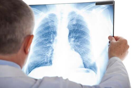 Um nódulo pulmonar pode ser indício de muitas doenças